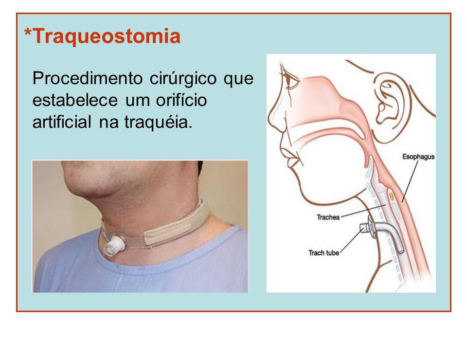 *Traqueostomia Procedimento cirúrgico que estabelece um orifício artificial na traquéia.