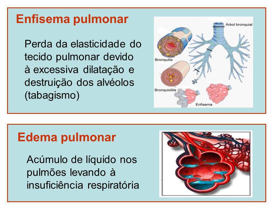 Enfisema pulmonar Perda da elasticidade do tecido pulmonar devido à excessiva dilatação e destruição dos alvéolos (tabagismo) Edema pulmonar Acúmulo d