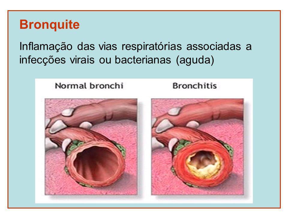 Bronquite Inflamação das vias respiratórias associadas a infecções virais ou bacterianas (aguda)