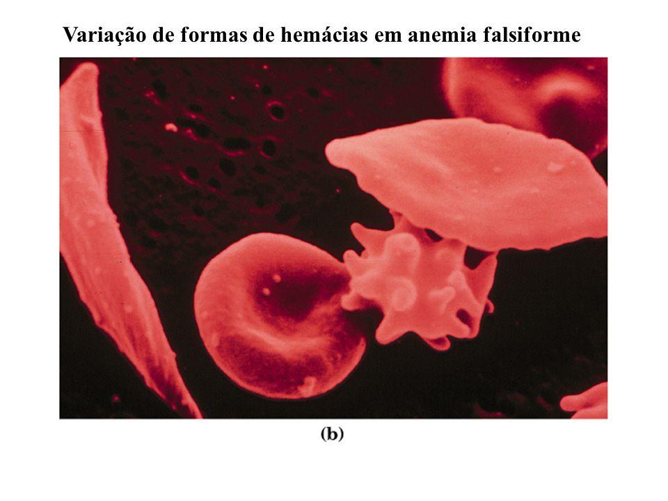Variação de formas de hemácias em anemia falsiforme