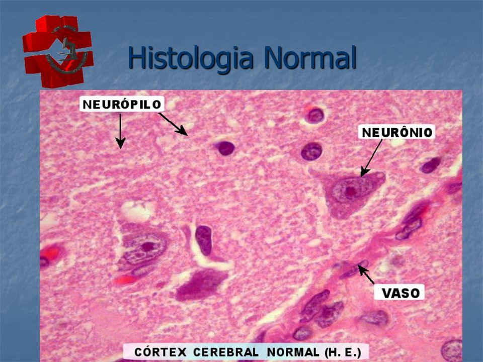 Neurônios e Neurópilo