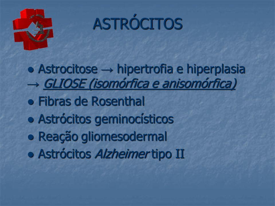 ASTRÓCITOS Astrocitose hipertrofia e hiperplasia GLIOSE (isomórfica e anisomórfica) Astrocitose hipertrofia e hiperplasia GLIOSE (isomórfica e anisomó