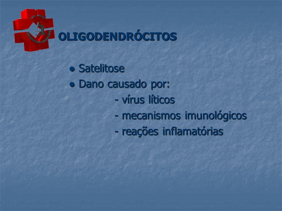 OLIGODENDRÓCITOS Satelitose Satelitose Dano causado por: Dano causado por: - vírus líticos - mecanismos imunológicos - reações inflamatórias