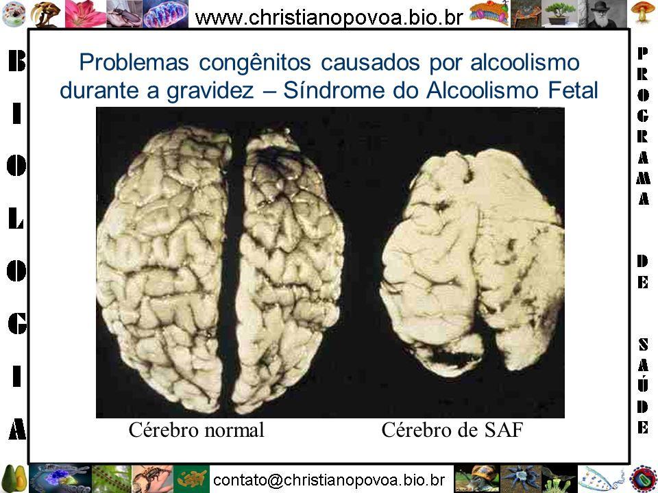 Problemas congênitos causados por alcoolismo durante a gravidez – Síndrome do Alcoolismo Fetal Cérebro normal Cérebro de SAF