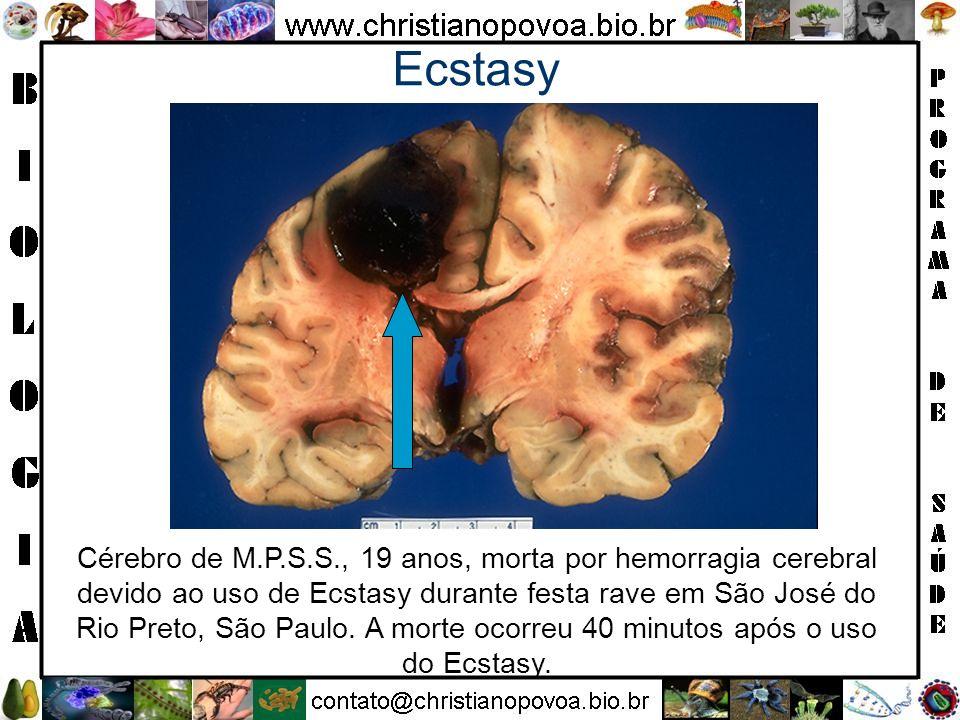 Ecstasy Cérebro de M.P.S.S., 19 anos, morta por hemorragia cerebral devido ao uso de Ecstasy durante festa rave em São José do Rio Preto, São Paulo. A