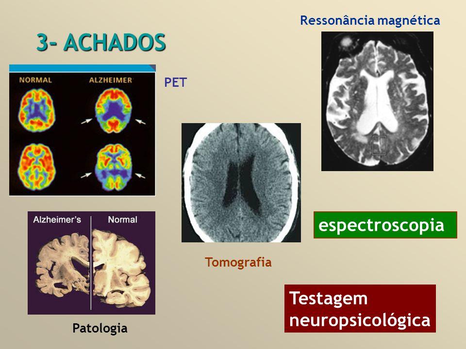 Ressonância magnética PET espectroscopia 3- ACHADOS Patologia Tomografia Testagem neuropsicológica