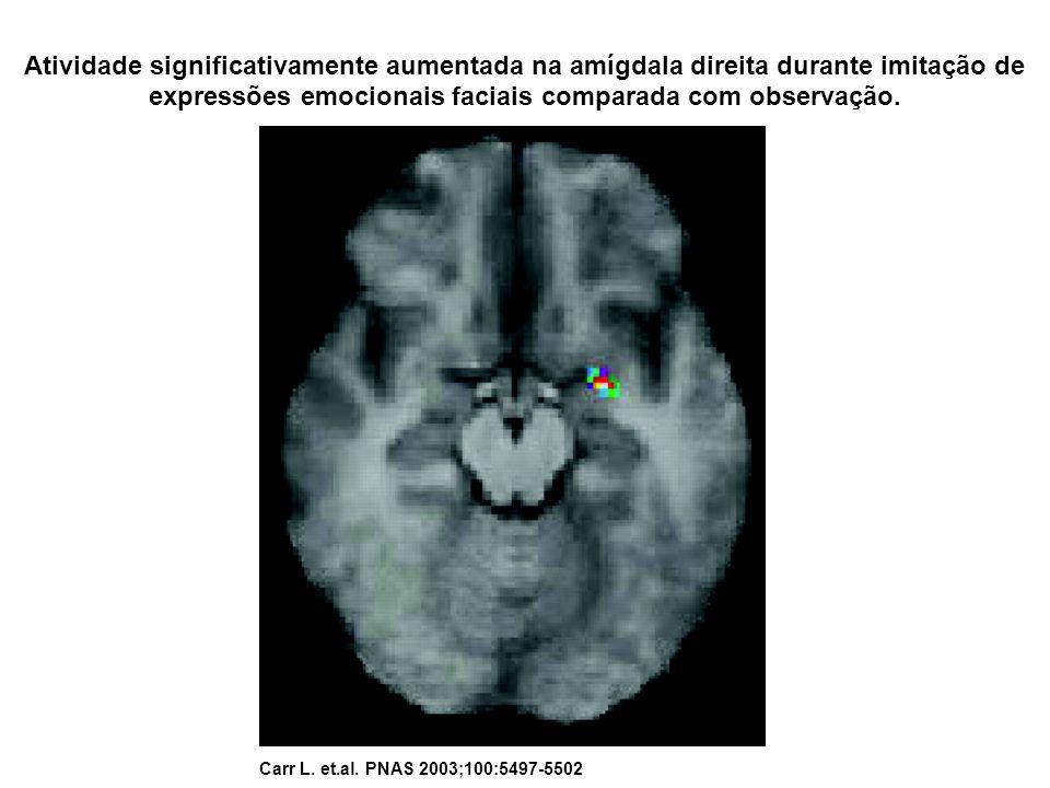 Atividade significativamente aumentada na amígdala direita durante imitação de expressões emocionais faciais comparada com observação. Carr L. et.al.