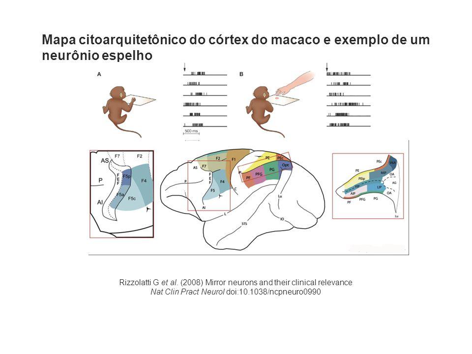 sagital transverso coronal ativação da área frontal inferior esquerda durante observação de ações significativas