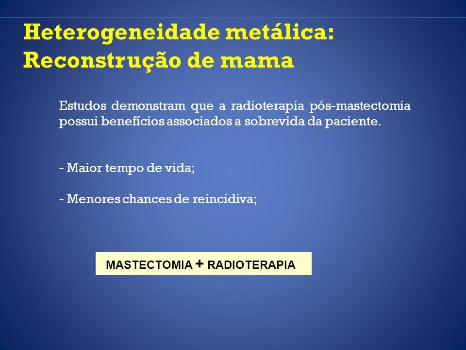 Heterogeneidade metálica: Reconstrução de mama Estudos demonstram que a radioterapia pós-mastectomia possui benefícios associados a sobrevida da pacie