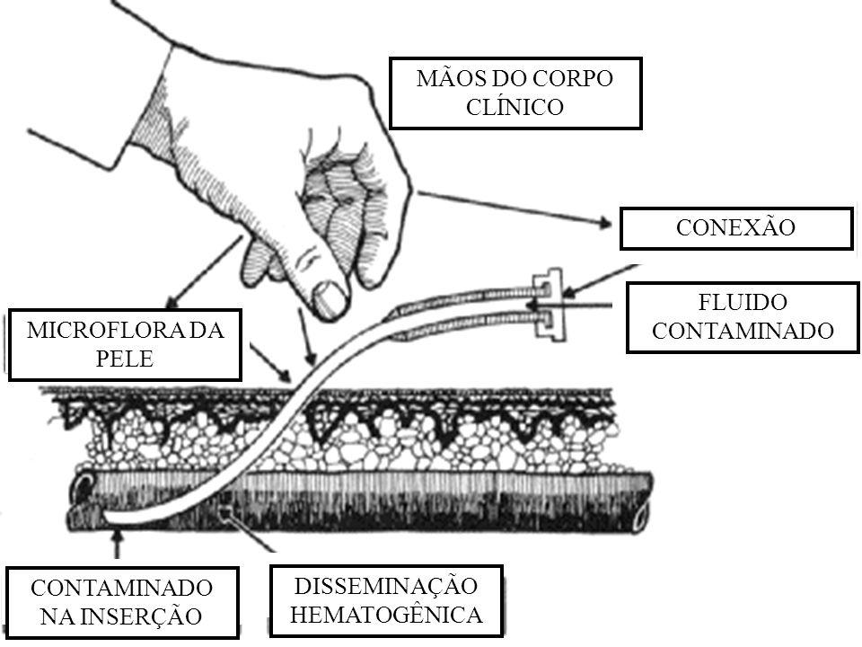 MÃOS DO CORPO CLÍNICO CONEXÃO FLUIDO CONTAMINADO MICROFLORA DA PELE CONTAMINADO NA INSERÇÃO DISSEMINAÇÃO HEMATOGÊNICA