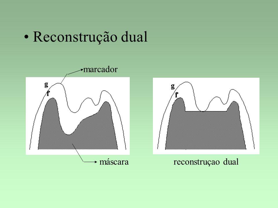 Reconstrução dual marcador máscarareconstruçao dual