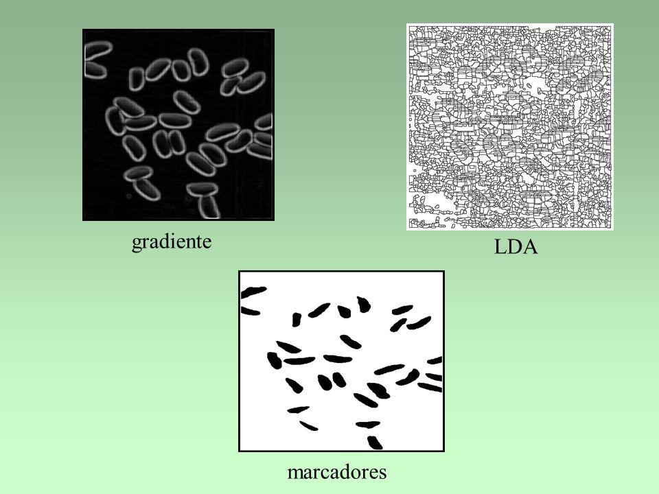 marcadores LDA