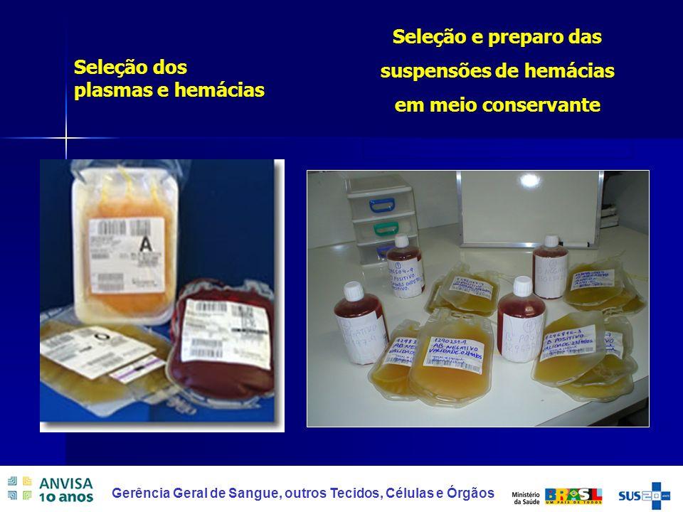 18 Gerência Geral de Sangue, outros Tecidos, Células e Órgãos Seleção e preparo das suspensões de hemácias em meio conservante Seleção dos plasmas e h
