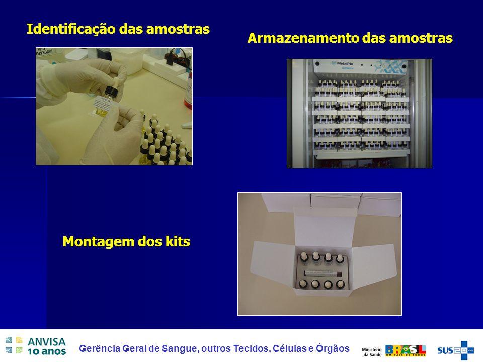 20 Gerência Geral de Sangue, outros Tecidos, Células e Órgãos Identificação das amostras Armazenamento das amostras Montagem dos kits