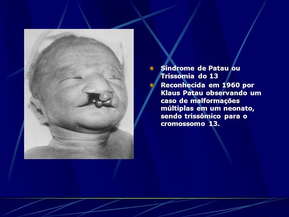 Síndrome de Patau ou Trissomia do 13 Reconhecida em 1960 por Klaus Patau observando um caso de malformações múltiplas em um neonato, sendo trissômico