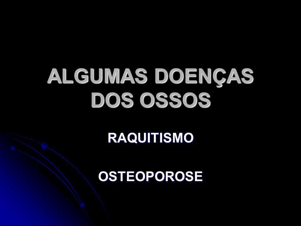 ALGUMAS DOENÇAS DOS OSSOS RAQUITISMO OSTEOPOROSE