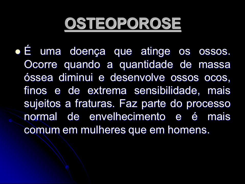 OSTEOPOROSE É uma doença que atinge os ossos. Ocorre quando a quantidade de massa óssea diminui e desenvolve ossos ocos, finos e de extrema sensibilid