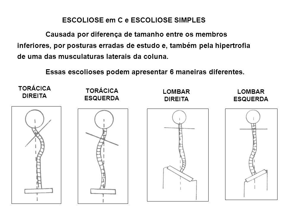ESCOLIOSE em C e ESCOLIOSE SIMPLES Causada por diferença de tamanho entre os membros inferiores, por posturas erradas de estudo e, também pela hipertr