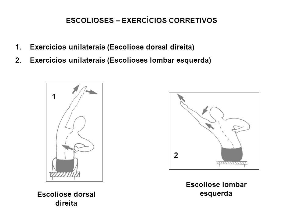 ESCOLIOSES – EXERCÍCIOS CORRETIVOS 1.Exercícios unilaterais (Escoliose dorsal direita) 2.Exercícios unilaterais (Escolioses lombar esquerda) 1 2 Escol