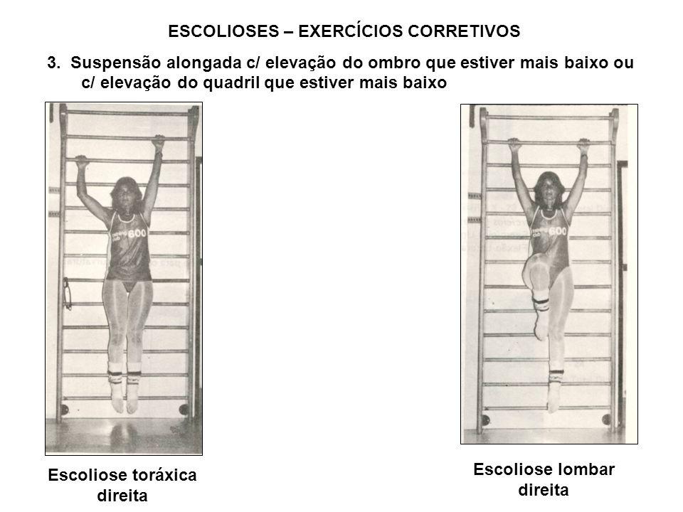 ESCOLIOSES – EXERCÍCIOS CORRETIVOS 3. Suspensão alongada c/ elevação do ombro que estiver mais baixo ou c/ elevação do quadril que estiver mais baixo