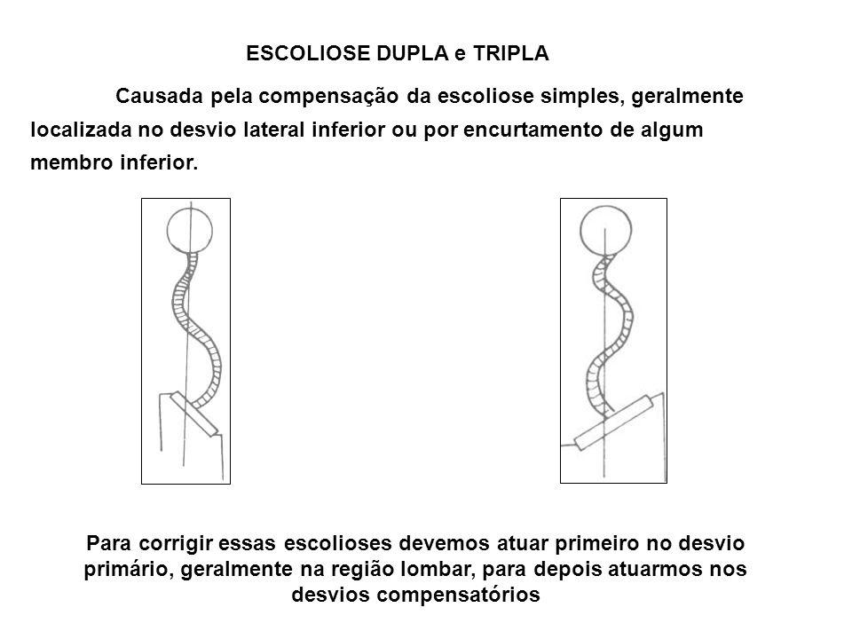 ESCOLIOSE DUPLA e TRIPLA Causada pela compensação da escoliose simples, geralmente localizada no desvio lateral inferior ou por encurtamento de algum