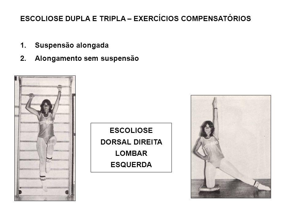 ESCOLIOSE DUPLA E TRIPLA – EXERCÍCIOS COMPENSATÓRIOS 1.Suspensão alongada 2.Alongamento sem suspensão ESCOLIOSE DORSAL DIREITA LOMBAR ESQUERDA