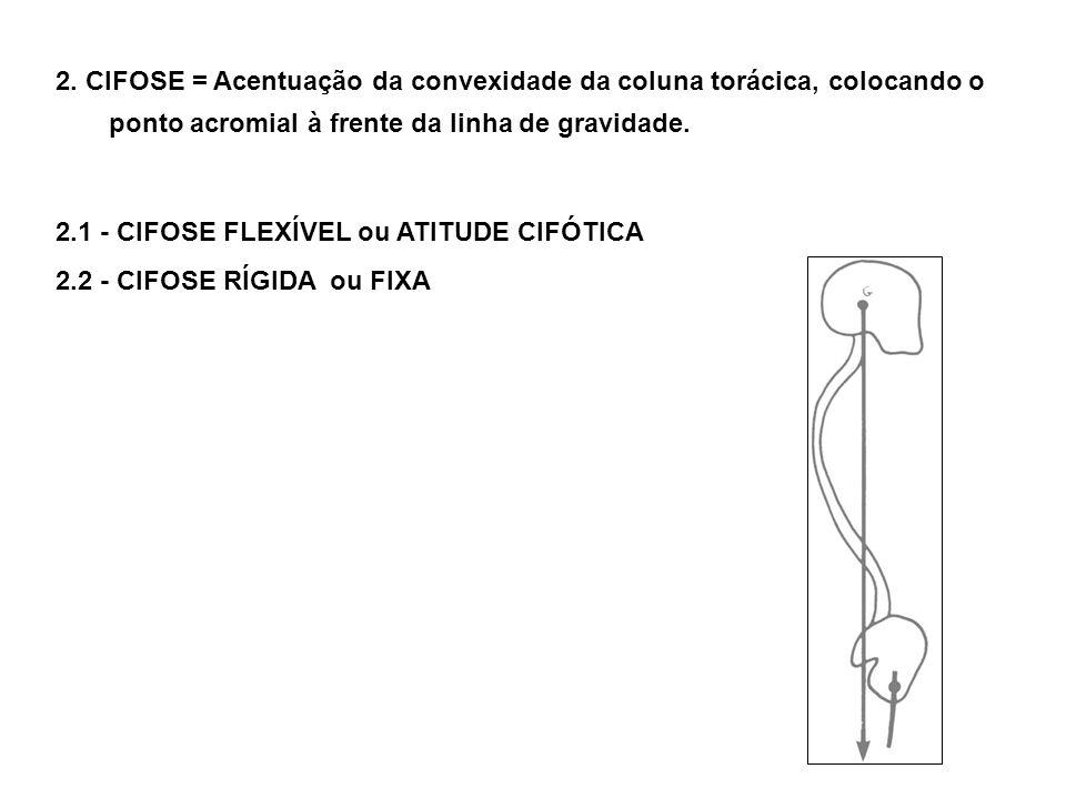 2. CIFOSE = Acentuação da convexidade da coluna torácica, colocando o ponto acromial à frente da linha de gravidade. 2.1 - CIFOSE FLEXÍVEL ou ATITUDE