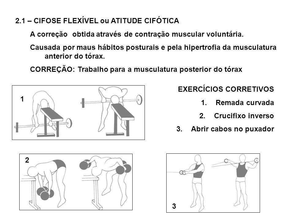 2.1 – CIFOSE FLEXÍVEL ou ATITUDE CIFÓTICA A correção obtida através de contração muscular voluntária. Causada por maus hábitos posturais e pela hipert