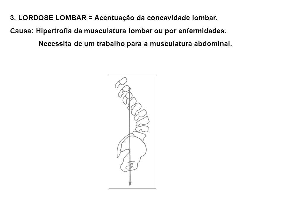 3. LORDOSE LOMBAR = Acentuação da concavidade lombar. Causa: Hipertrofia da musculatura lombar ou por enfermidades. Necessita de um trabalho para a mu
