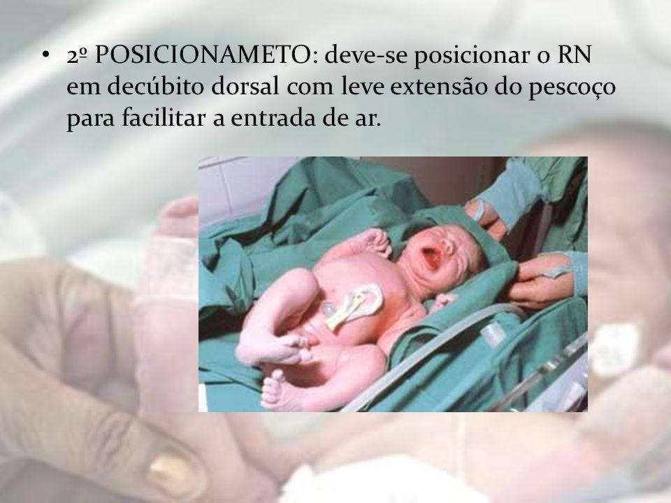 3ª ASPIRAÇÃO NEONATAL: Retirada delicada de muco e resquícios de líquido amniótico na boca, nariz e garganta do neonato, utilizando uma sonda de aspiração nº 5 ou 6, conectada ao sistema de vácuo, com uma pressão de 100 mmHg ou 10 cmH²O ou Pera aspirativa.