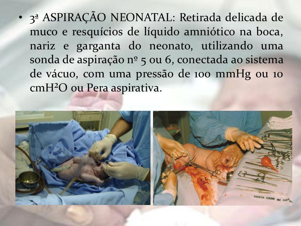 3ª ASPIRAÇÃO NEONATAL: Retirada delicada de muco e resquícios de líquido amniótico na boca, nariz e garganta do neonato, utilizando uma sonda de aspir