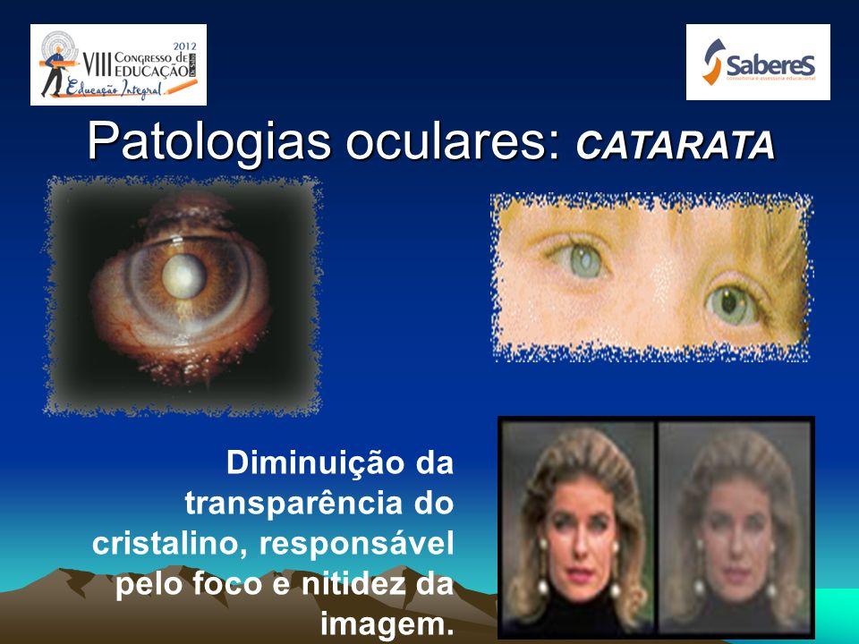Visão Subnormal ou Baixa Visão É considerado baixa visão aquele que apresenta desde a capacidade de perceber luminosidade até o grau em que a deficiên