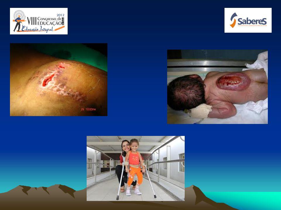 MIELOMENINGOCELE: Mielomeningocele ou Espinha Bífida é um defeito congênito caracterizado por formação incompleta da medula espinhal e das estruturas
