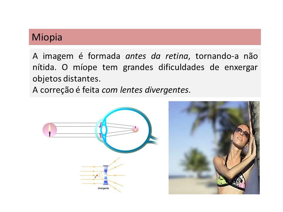 Miopia A imagem é formada antes da retina, tornando-a não nítida. O míope tem grandes dificuldades de enxergar objetos distantes. A correção é feita c