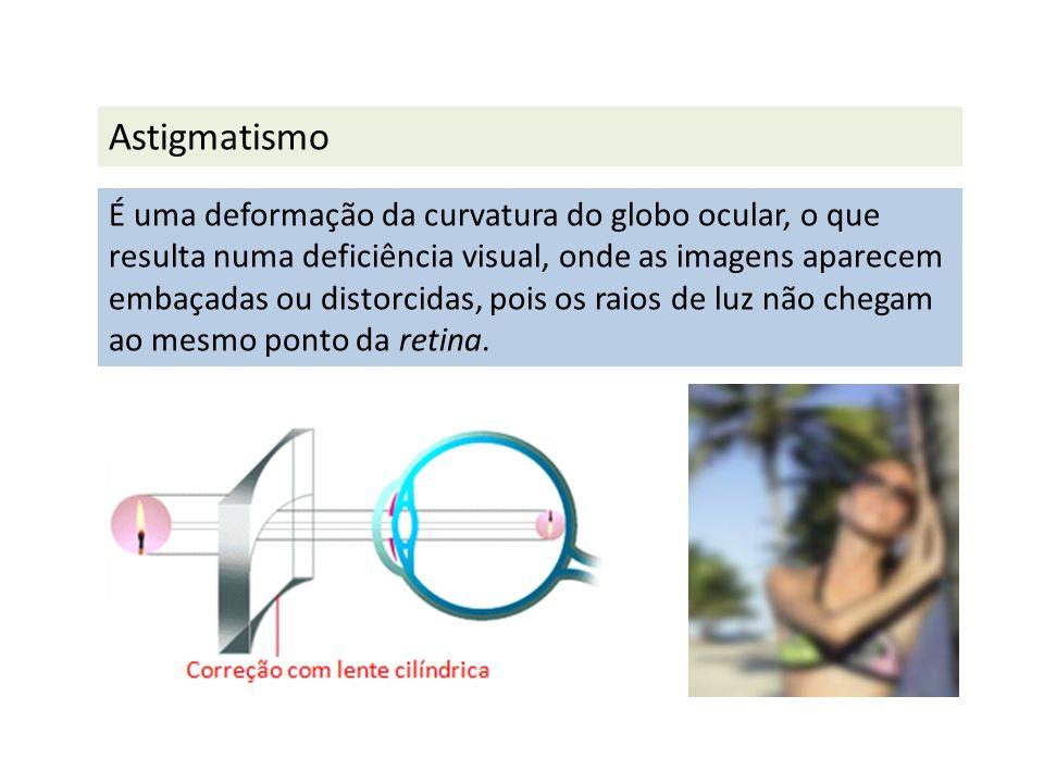 Astigmatismo É uma deformação da curvatura do globo ocular, o que resulta numa deficiência visual, onde as imagens aparecem embaçadas ou distorcidas,