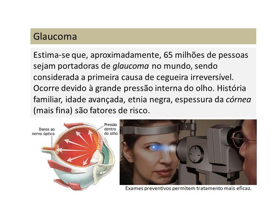 Glaucoma Estima-se que, aproximadamente, 65 milhões de pessoas sejam portadoras de glaucoma no mundo, sendo considerada a primeira causa de cegueira i