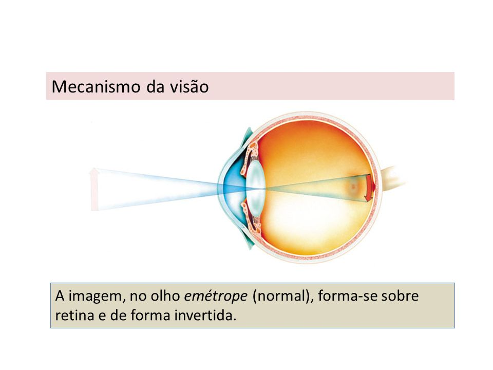 Astigmatismo É uma deformação da curvatura do globo ocular, o que resulta numa deficiência visual, onde as imagens aparecem embaçadas ou distorcidas, pois os raios de luz não chegam ao mesmo ponto da retina.