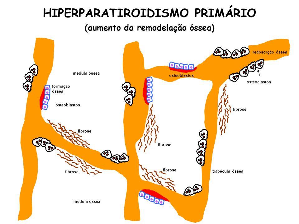 HIPERPARATIROIDISMO PRIMÁRIO (aumento da remodelação óssea) medula óssea trabécula óssea osteoblastos osteoclastos fibrose formação óssea reabsorção ó