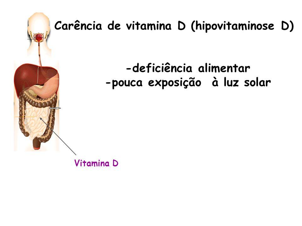 Carência de vitamina D (hipovitaminose D) -deficiência alimentar -pouca exposição à luz solar Vitamina D