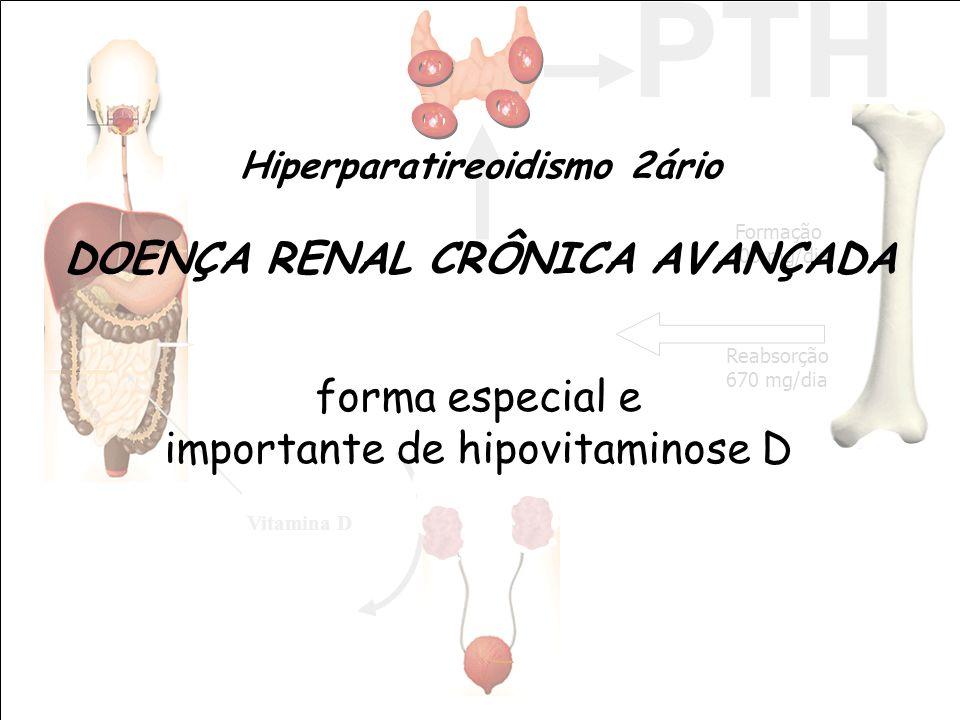 Vitamina D PTH Reabsorção 670 mg/dia Formação 600 mg/dia Hiperparatireoidismo 2ário DOENÇA RENAL CRÔNICA AVANÇADA forma especial e importante de hipov