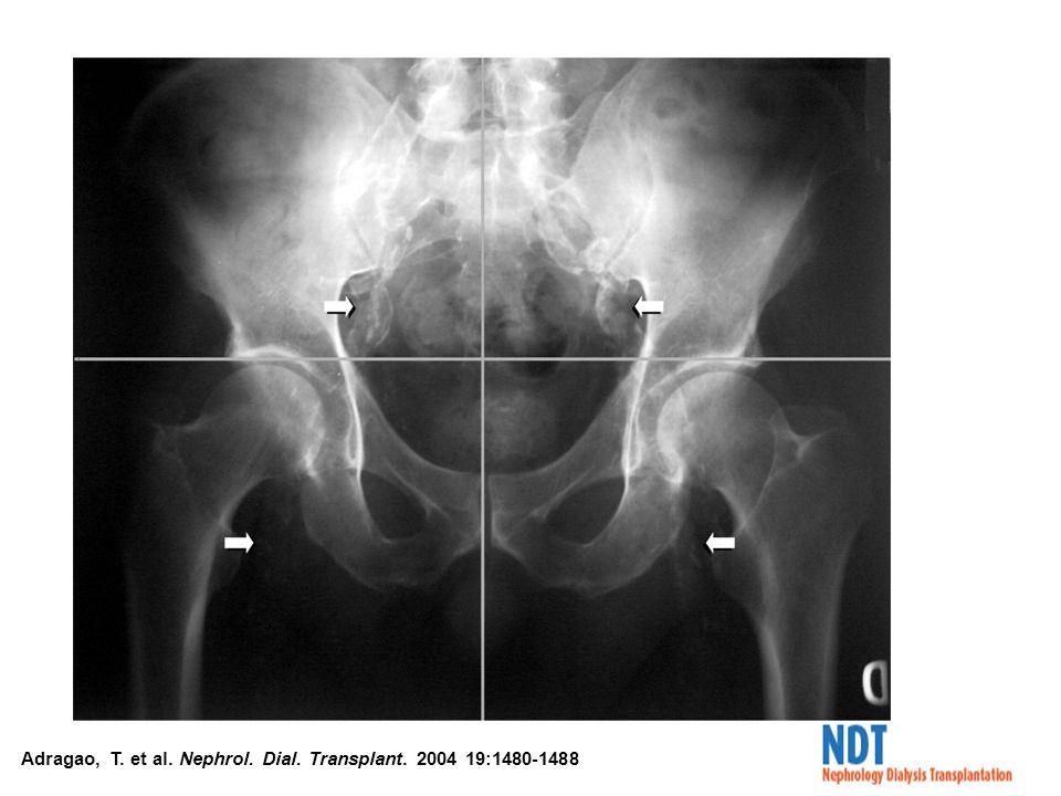 Adragao, T. et al. Nephrol. Dial. Transplant. 2004 19:1480-1488