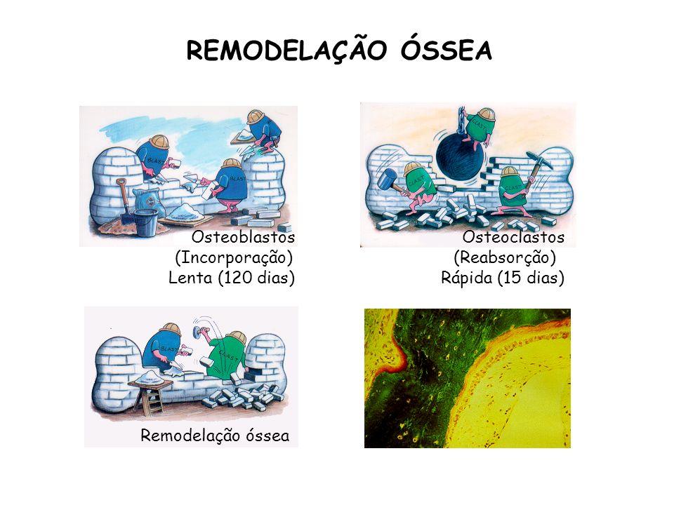 Osteoblastos Osteoclastos Remodelação óssea REMODELAÇÃO ÓSSEA (Incorporação)(Reabsorção) Lenta (120 dias)Rápida (15 dias)