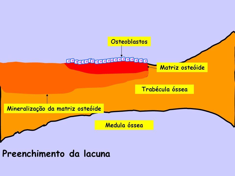 Medula óssea Trabécula óssea Matriz osteóide Mineralização da matriz osteóide Osteoblastos Preenchimento da lacuna
