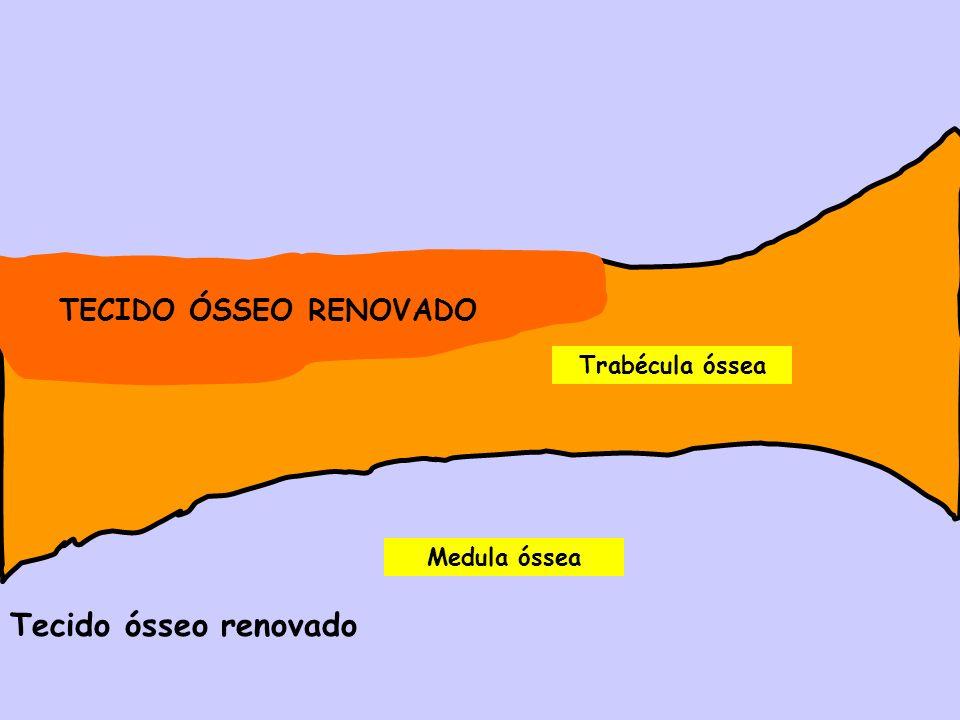 Medula óssea Trabécula óssea Tecido ósseo renovado TECIDO ÓSSEO RENOVADO