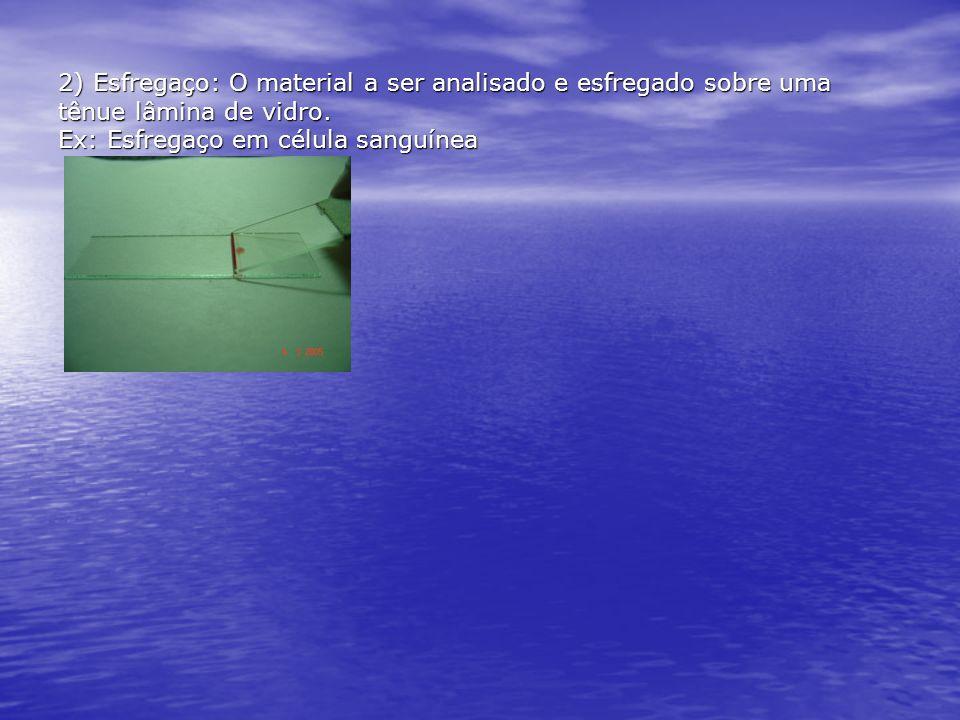 2) Esfregaço: O material a ser analisado e esfregado sobre uma tênue lâmina de vidro. Ex: Esfregaço em célula sanguínea