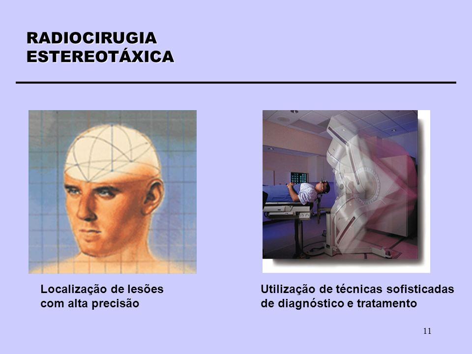 11 RADIOCIRUGIAESTEREOTÁXICA Localização de lesões com alta precisão Utilização de técnicas sofisticadas de diagnóstico e tratamento