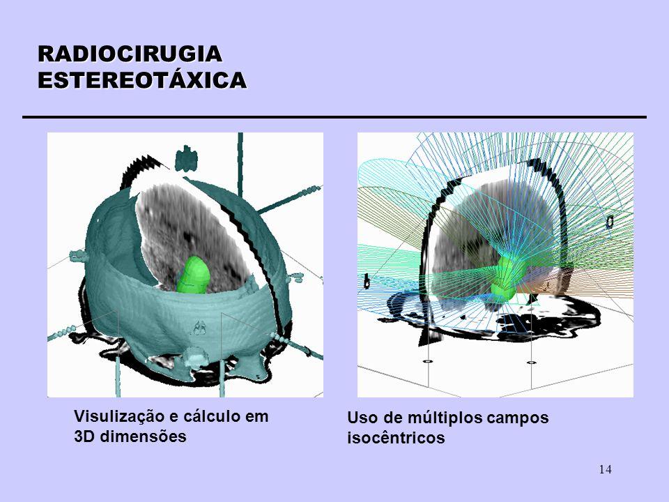 14 RADIOCIRUGIAESTEREOTÁXICA Visulização e cálculo em 3D dimensões Uso de múltiplos campos isocêntricos