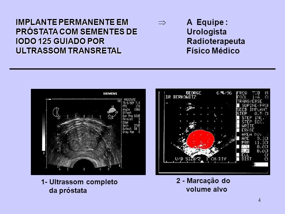 4 IMPLANTE PERMANENTE EM IMPLANTE PERMANENTE EM A Equipe : PRÓSTATA COM SEMENTES DE PRÓSTATA COM SEMENTES DEUrologista IODO 125 GUIADO POR IODO 125 GUIADO PORRadioterapeuta ULTRASSOM TRANSRETAL ULTRASSOM TRANSRETAL Físico Médico 1- Ultrassom completo da próstata 2 - Marcação do volume alvo