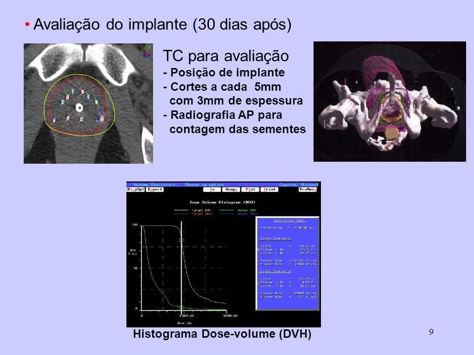 9 Avaliação do implante (30 dias após) TC para avaliação - Posição de implante - Cortes a cada 5mm com 3mm de espessura - Radiografia AP para contagem das sementes Histograma Dose-volume (DVH)