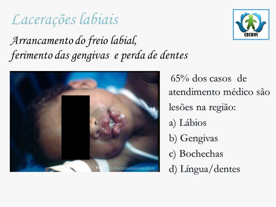 Lacerações labiais Arrancamento do freio labial, ferimento das gengivas e perda de dentes 65% dos casos de atendimento médico são 65% dos casos de ate